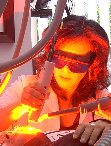 Laser Assisted Uvulopalatoplasty