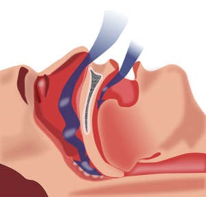 obstructive-sleep-apnoea